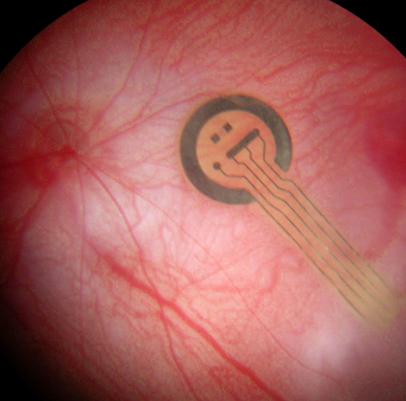 Implant de rétine artificielle